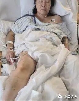 血腥暴力!华人金店被打砸抢:老板娘被打进重症监护:腿被打断 血溅满墙,暴徒持铁棍追打!