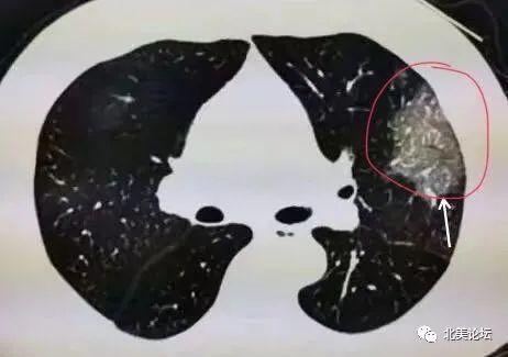 法医警告:新冠病毒对无症患者的肺部造成严重损害!
